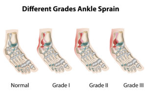Ankle Sprain Recovery Tips