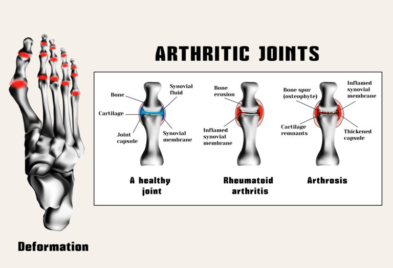 Foot Arthritis Doctor in Corona California
