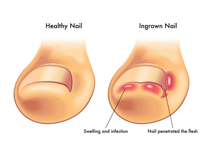 Diabetics and Ingrown Toenails