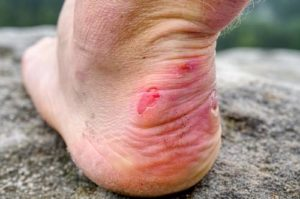 Caring for Diabetic Blisters